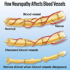 Peripheral Neuroapthy Blood Vessels